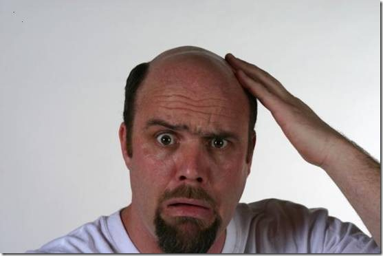 Image result for images of people suffering from hair loss